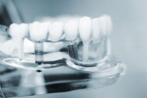 Implantologie Zahnimplantat